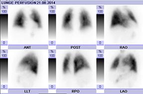 Lungenszintigraphie