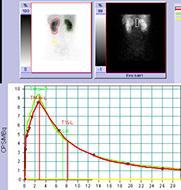 Nierenszintigraphie