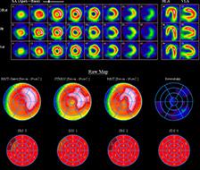 Herzmuskelszintigraphie-bzw-myocardszintigraphie